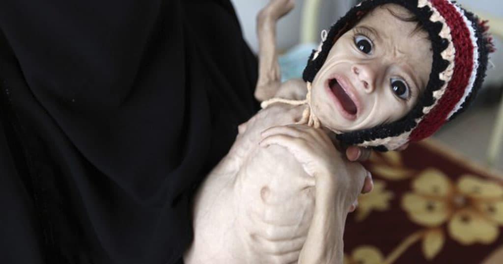 paidia thumata polemou yemeni limoktonia
